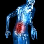 spine injury, alaksa attorney